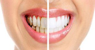 كيفية علاج تسوس الاسنان