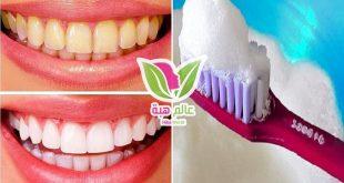 كيفية تبييض الأسنان في المنزل