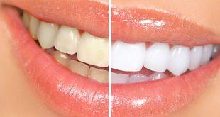 علاج إصفرار الأسنان