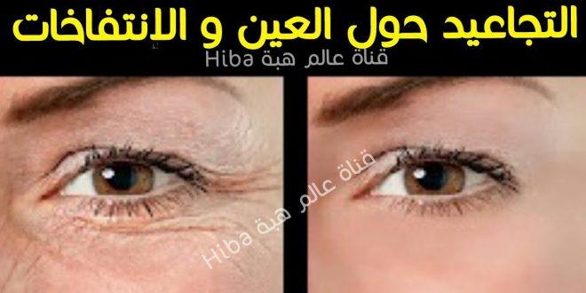 التجاعيد حول العينين كيفية إزالتها